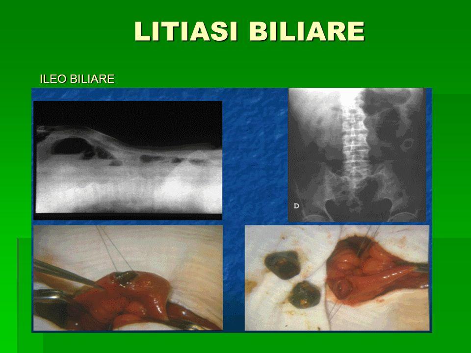 LITIASI BILIARE ILEO BILIARE