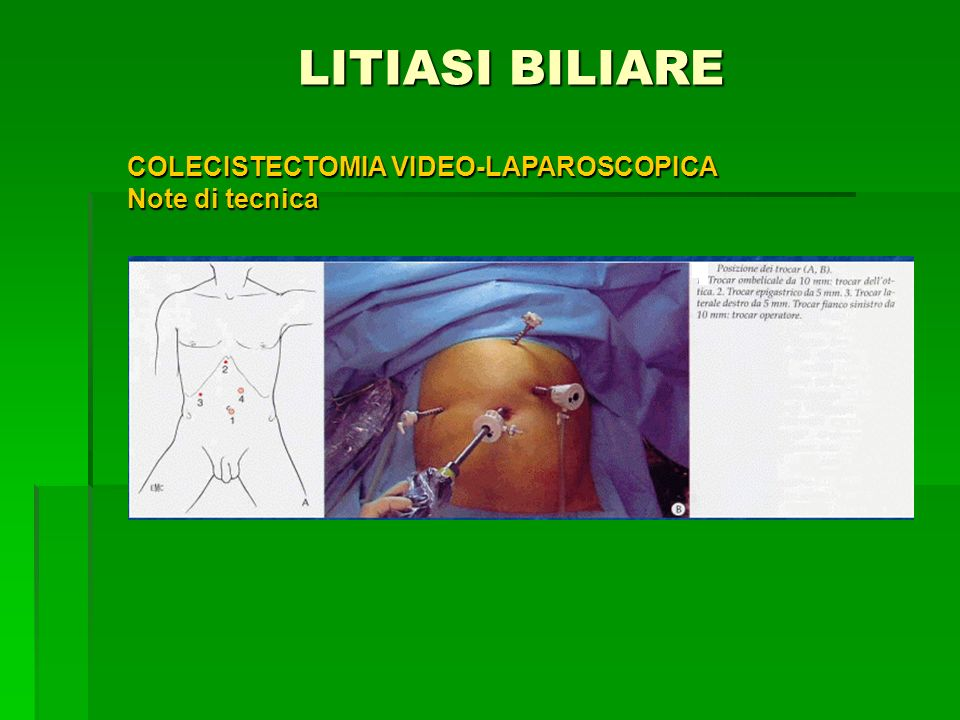 LITIASI BILIARE COLECISTECTOMIA VIDEO-LAPAROSCOPICA Note di tecnica