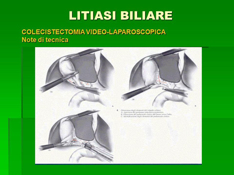 LITIASI BILIARE COLECISTECTOMIA VIDEO-LAPAROSCOPICA Note di tecnica