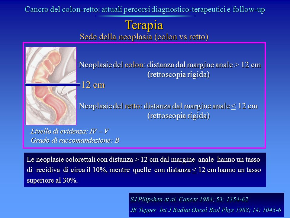 Sede della neoplasia (colon vs retto)
