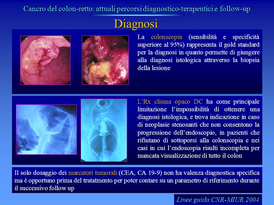 Cancro del colon-retto: attuali percorsi diagnostico-terapeutici e follow-up