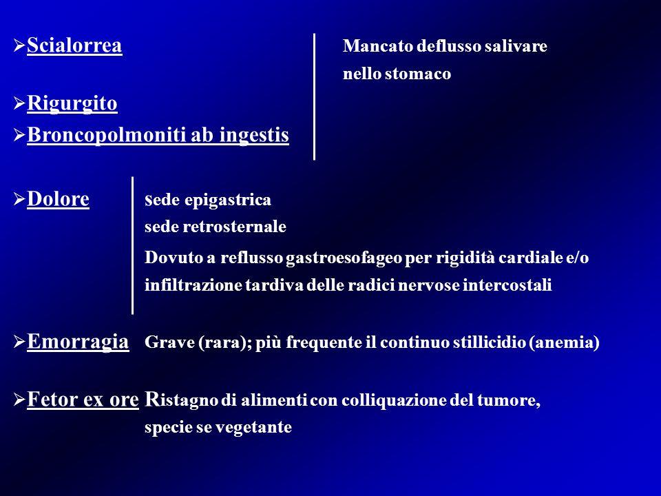 Scialorrea Mancato deflusso salivare Rigurgito