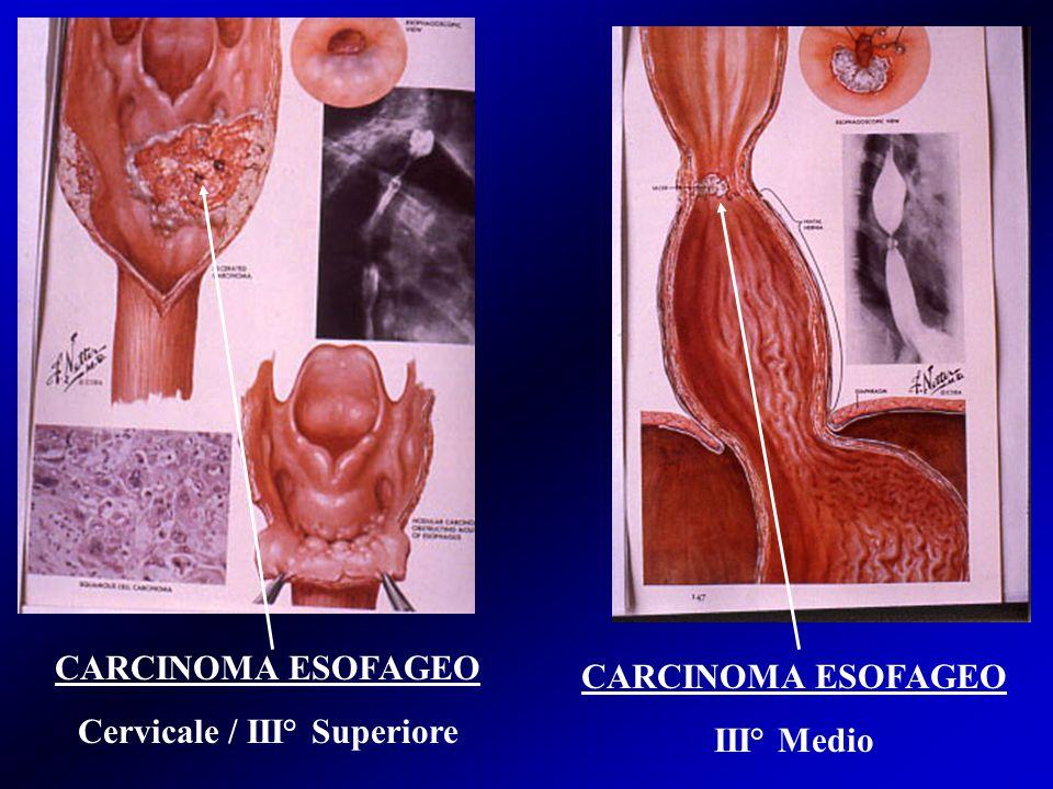 Cervicale / III° Superiore