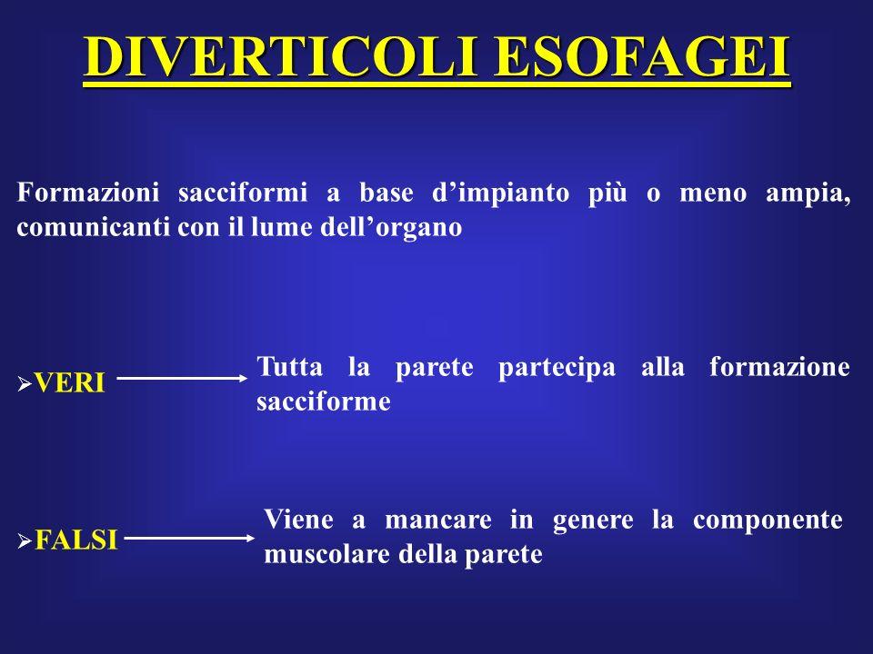 DIVERTICOLI ESOFAGEIFormazioni sacciformi a base d'impianto più o meno ampia, comunicanti con il lume dell'organo.