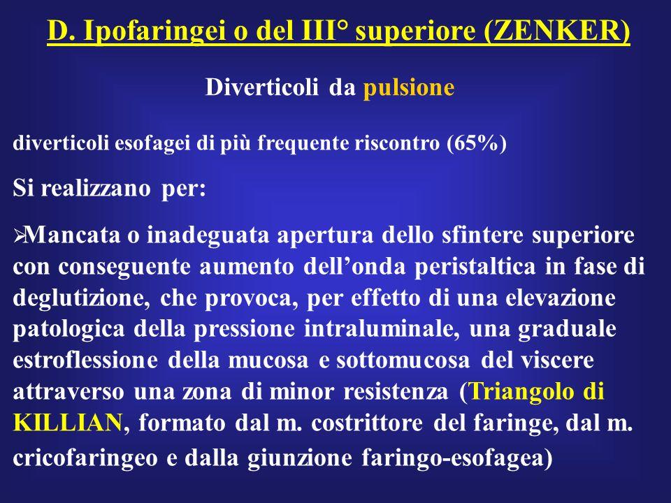 D. Ipofaringei o del III° superiore (ZENKER)