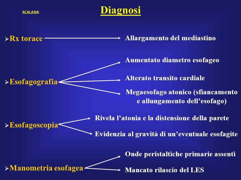 Megaesofago atonico (sfiancamento e allungamento dell'esofago)