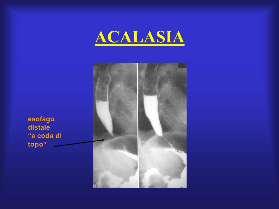 ACALASIA esofago distale a coda di topo