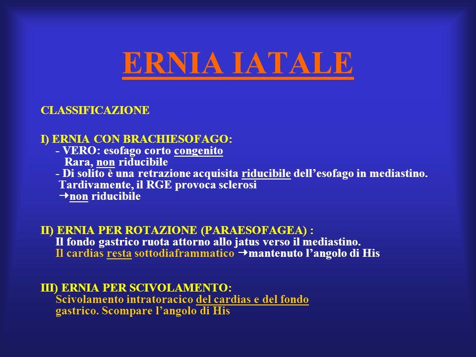 ERNIA IATALE CLASSIFICAZIONE I) ERNIA CON BRACHIESOFAGO:
