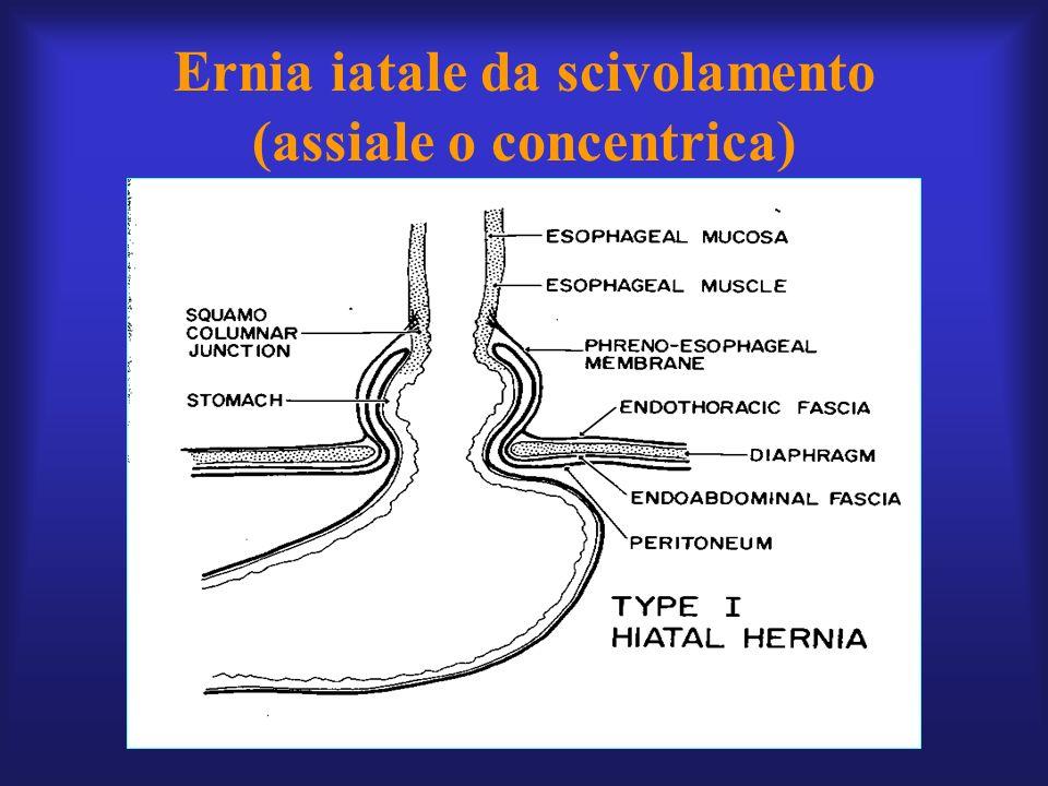 Ernia iatale da scivolamento (assiale o concentrica)