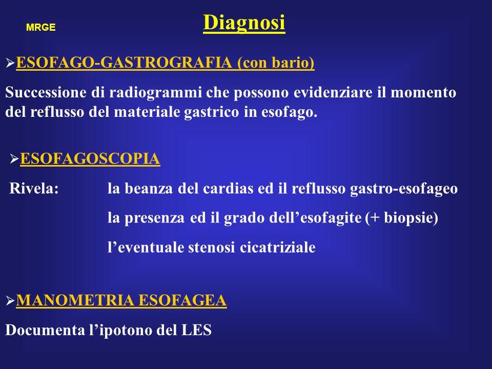Diagnosi ESOFAGO-GASTROGRAFIA (con bario)