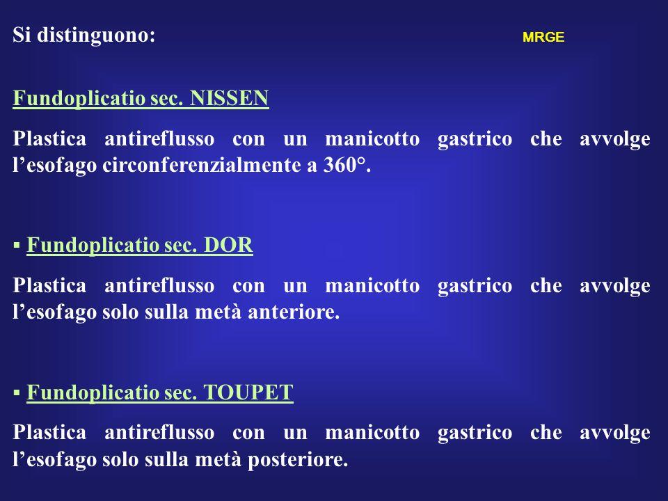 Si distinguono: MRGE Fundoplicatio sec. NISSEN.