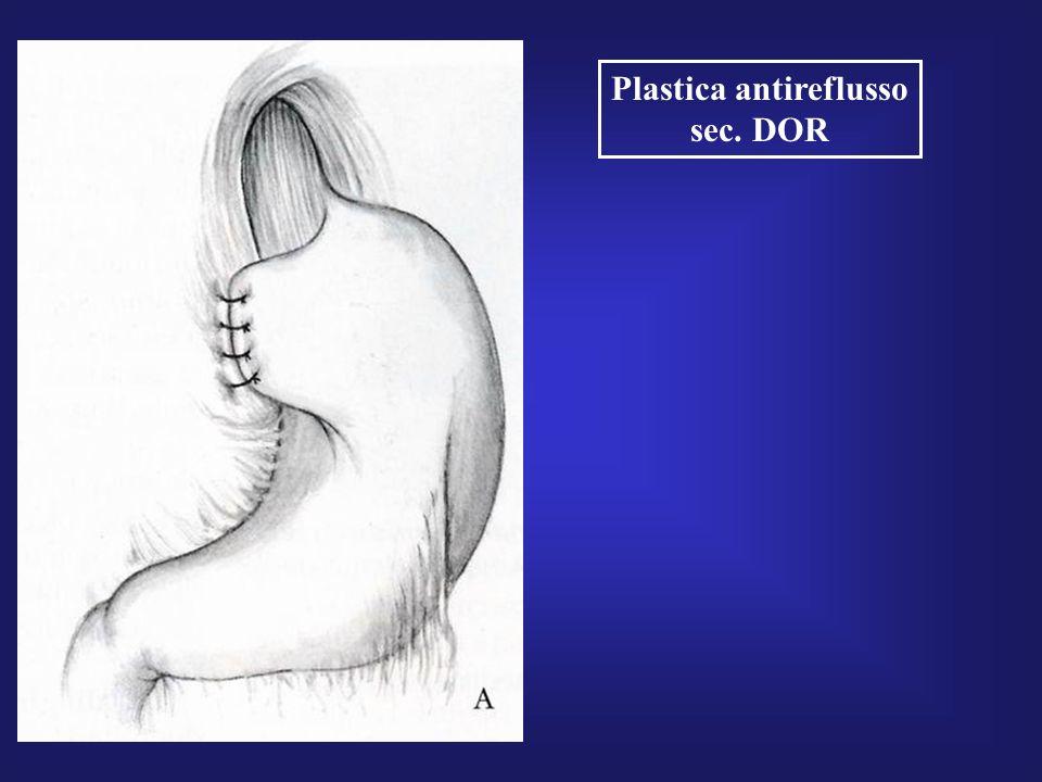 Plastica antireflusso sec. DOR