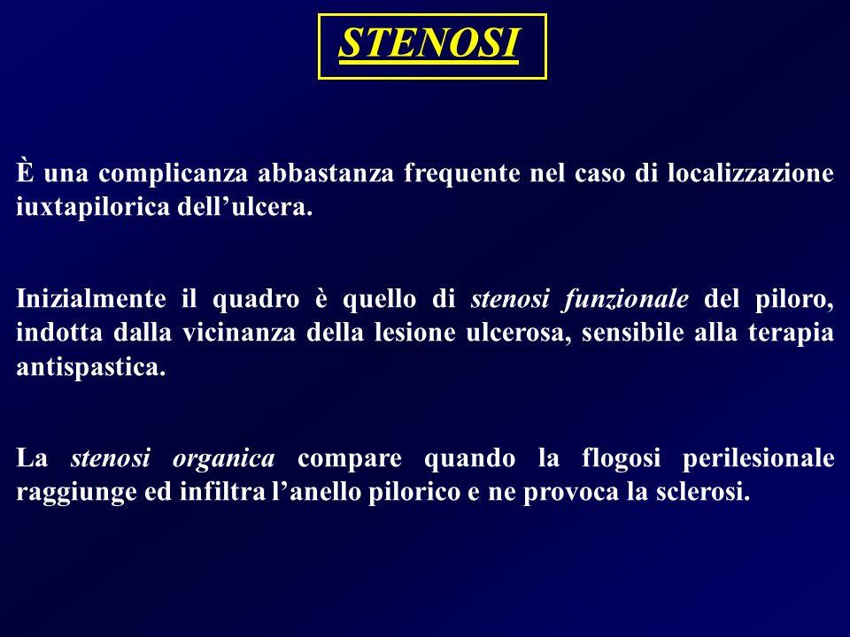 STENOSI È una complicanza abbastanza frequente nel caso di localizzazione iuxtapilorica dell'ulcera.