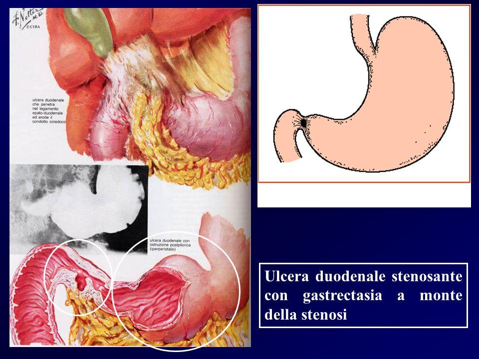 Ulcera duodenale stenosante con gastrectasia a monte della stenosi
