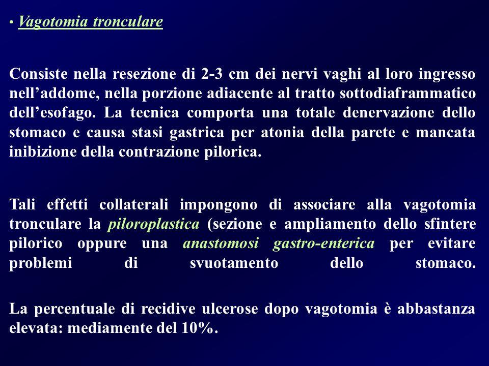 Vagotomia tronculare