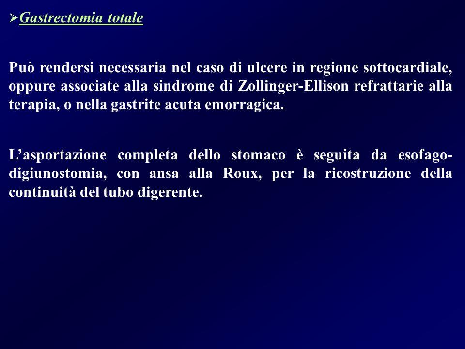 Gastrectomia totale