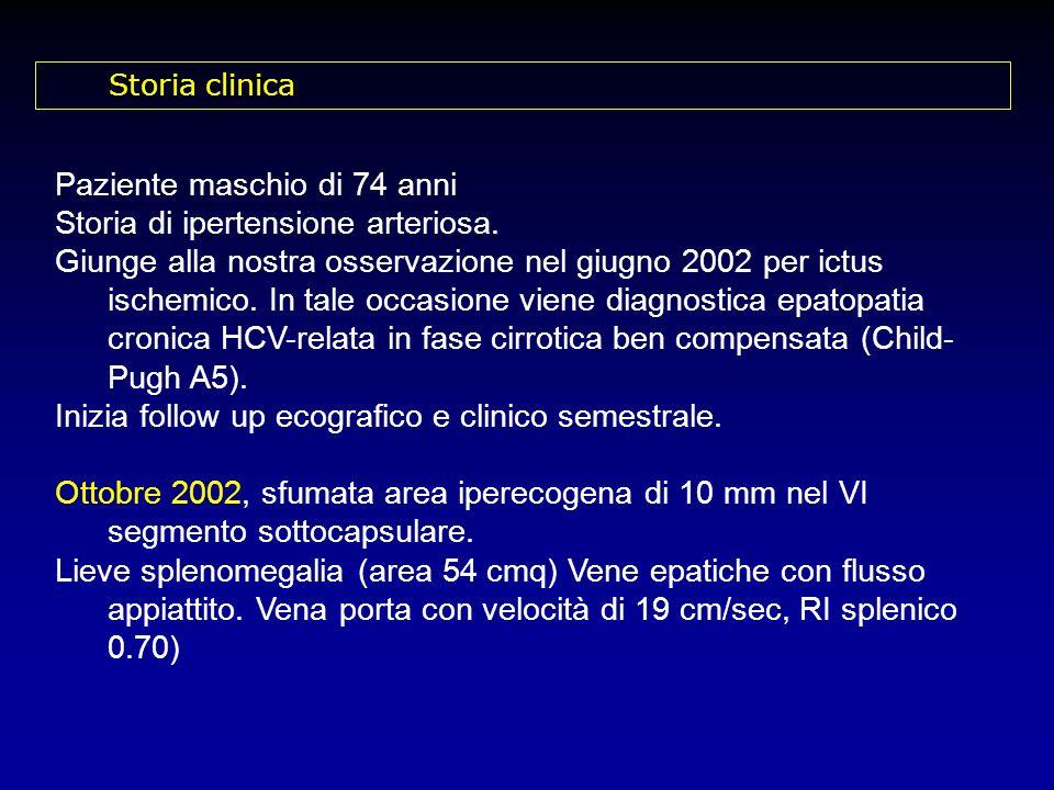 Paziente maschio di 74 anni Storia di ipertensione arteriosa.
