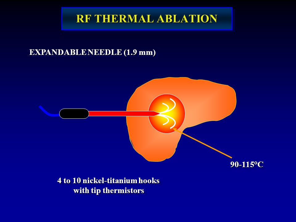 RF THERMAL ABLATION EXPANDABLE NEEDLE (1.9 mm) 90-115°C