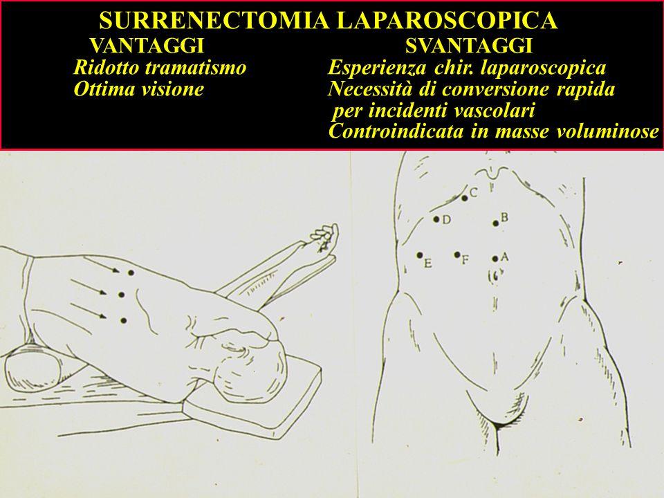 SURRENECTOMIA LAPAROSCOPICA