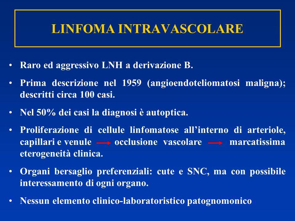 LINFOMA INTRAVASCOLARE