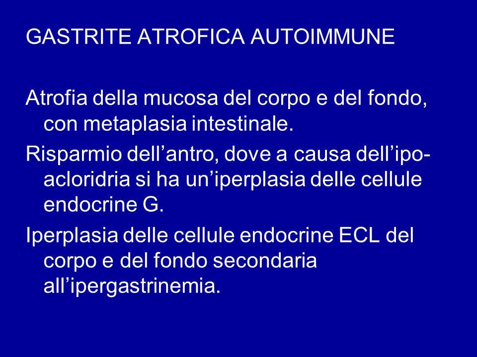 GASTRITE ATROFICA AUTOIMMUNE