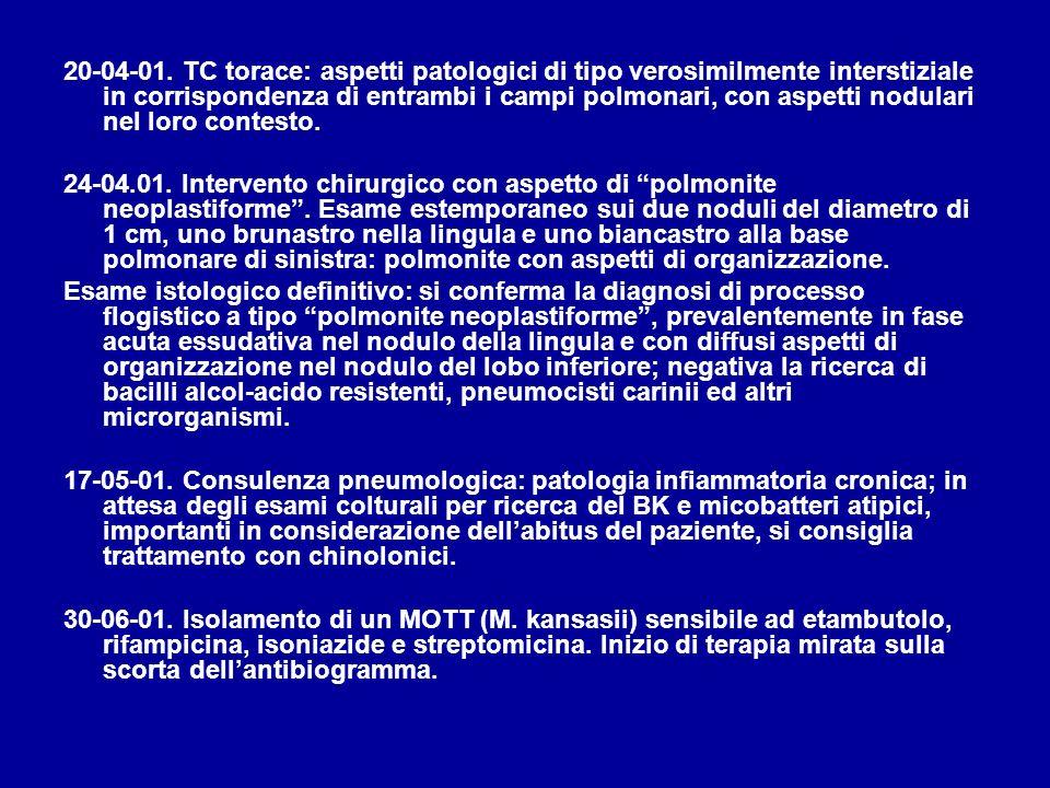 20-04-01. TC torace: aspetti patologici di tipo verosimilmente interstiziale in corrispondenza di entrambi i campi polmonari, con aspetti nodulari nel loro contesto.