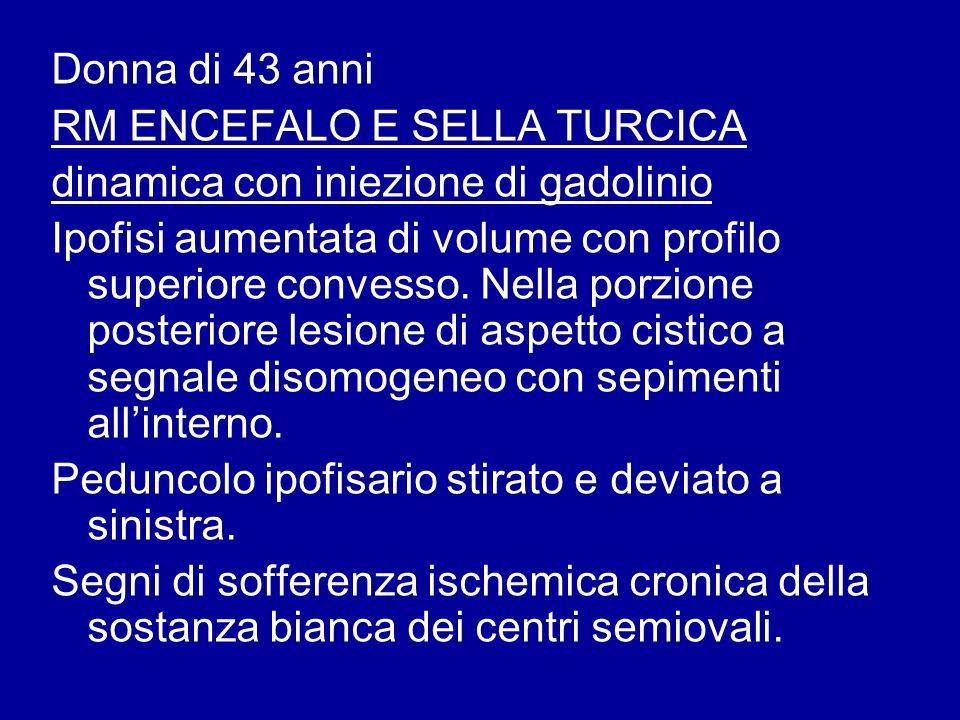 Donna di 43 anni RM ENCEFALO E SELLA TURCICA. dinamica con iniezione di gadolinio.