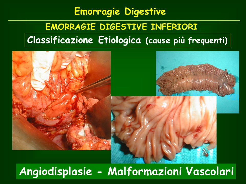 Angiodisplasie - Malformazioni Vascolari
