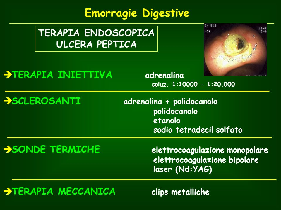Emorragie Digestive TERAPIA ENDOSCOPICA ULCERA PEPTICA