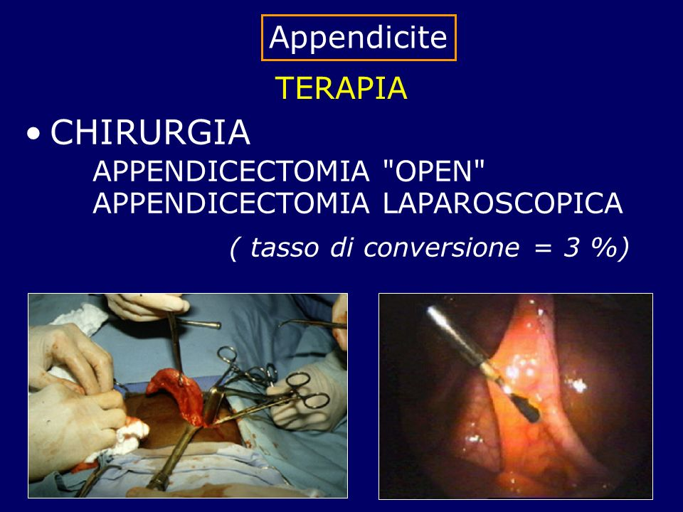 TERAPIA CHIRURGIA APPENDICECTOMIA OPEN APPENDICECTOMIA LAPAROSCOPICA