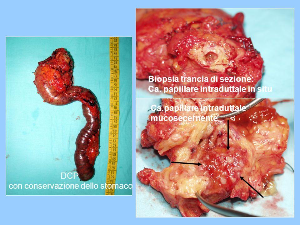 con conservazione dello stomaco