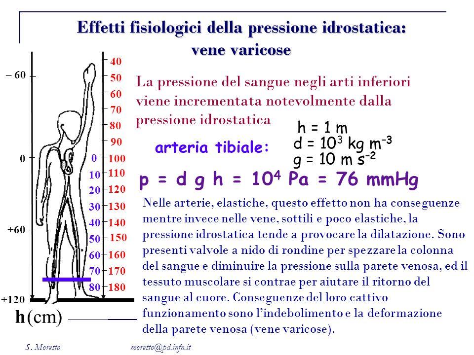 Effetti fisiologici della pressione idrostatica: vene varicose