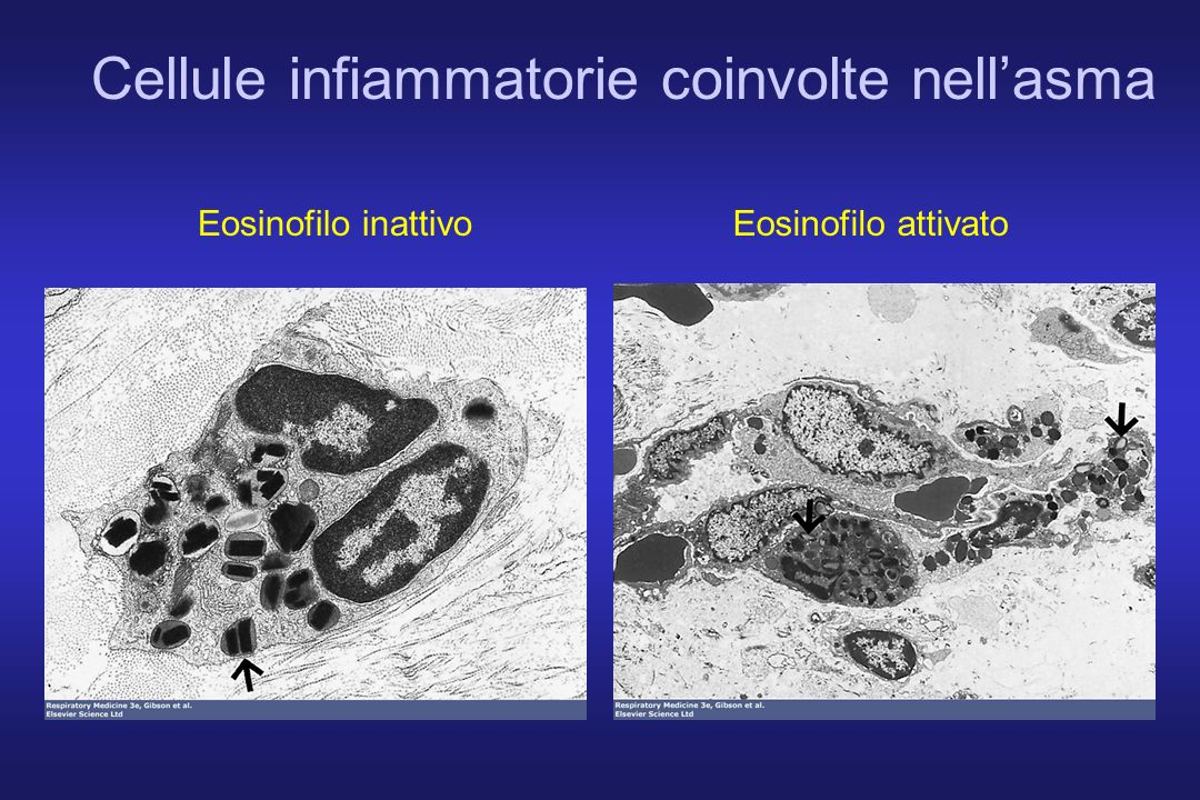 Cellule infiammatorie coinvolte nell'asma