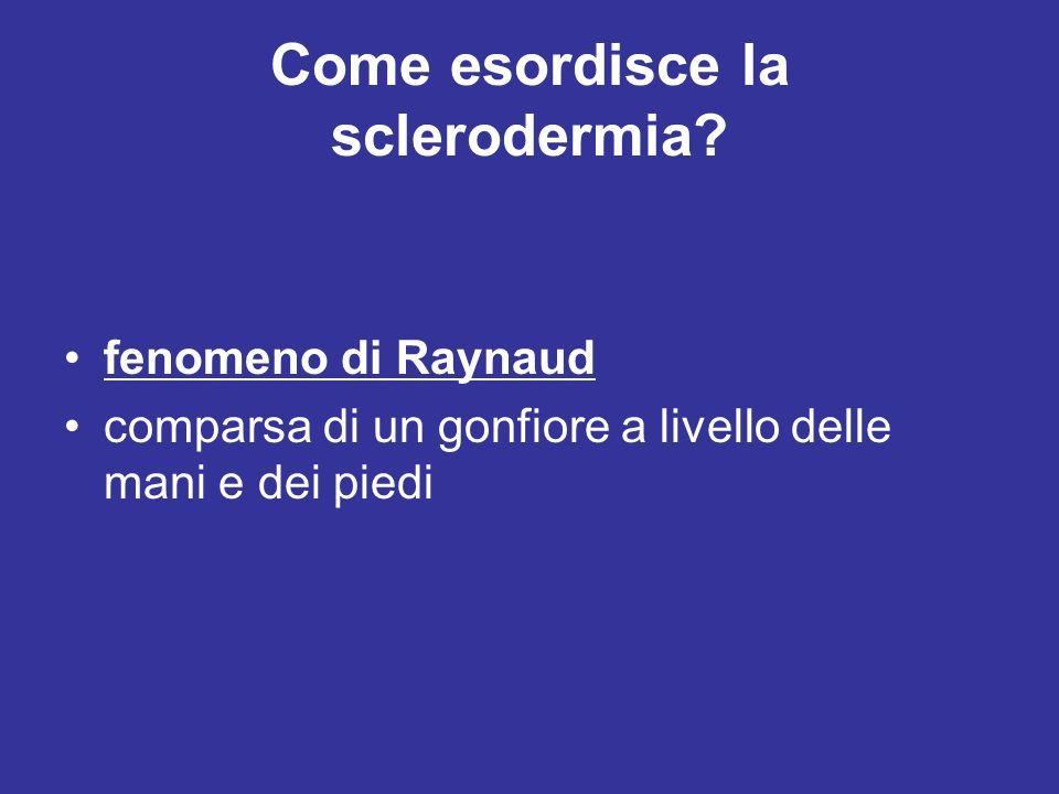 Come esordisce la sclerodermia