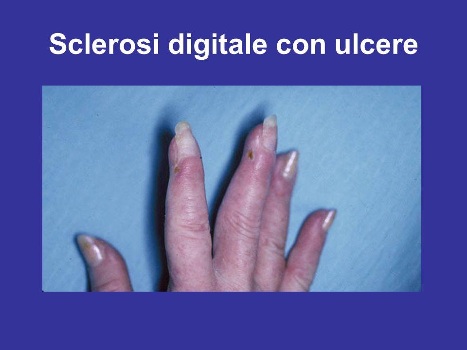 Sclerosi digitale con ulcere