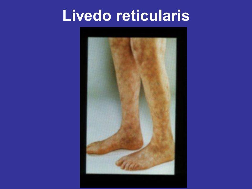 Livedo reticularis