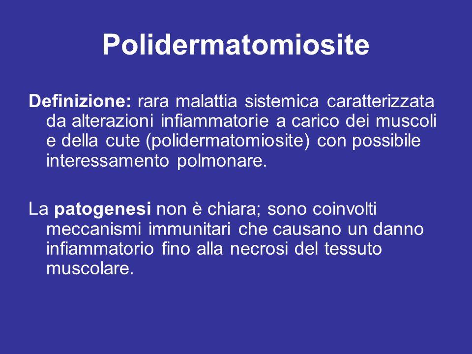 Polidermatomiosite