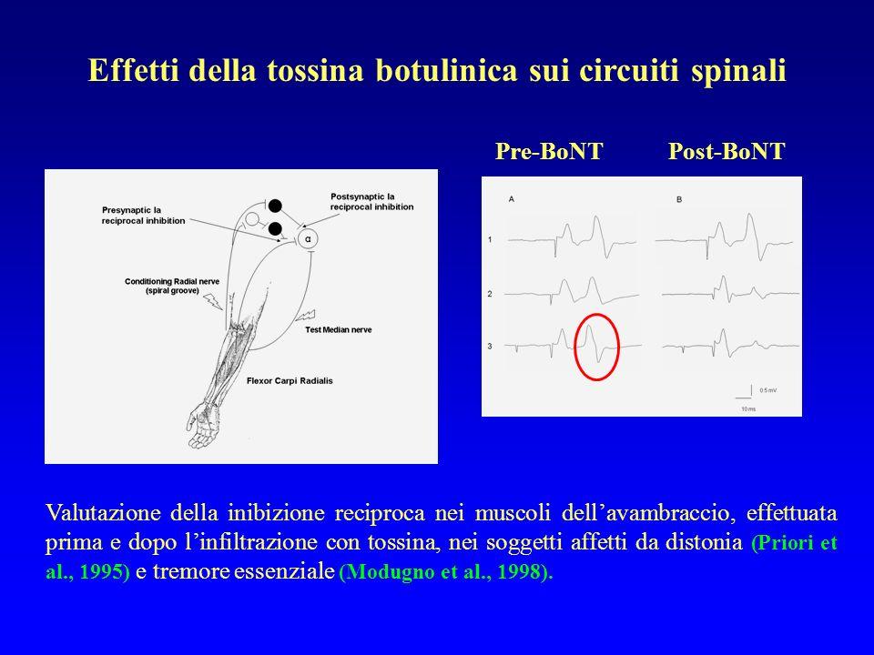 Effetti della tossina botulinica sui circuiti spinali