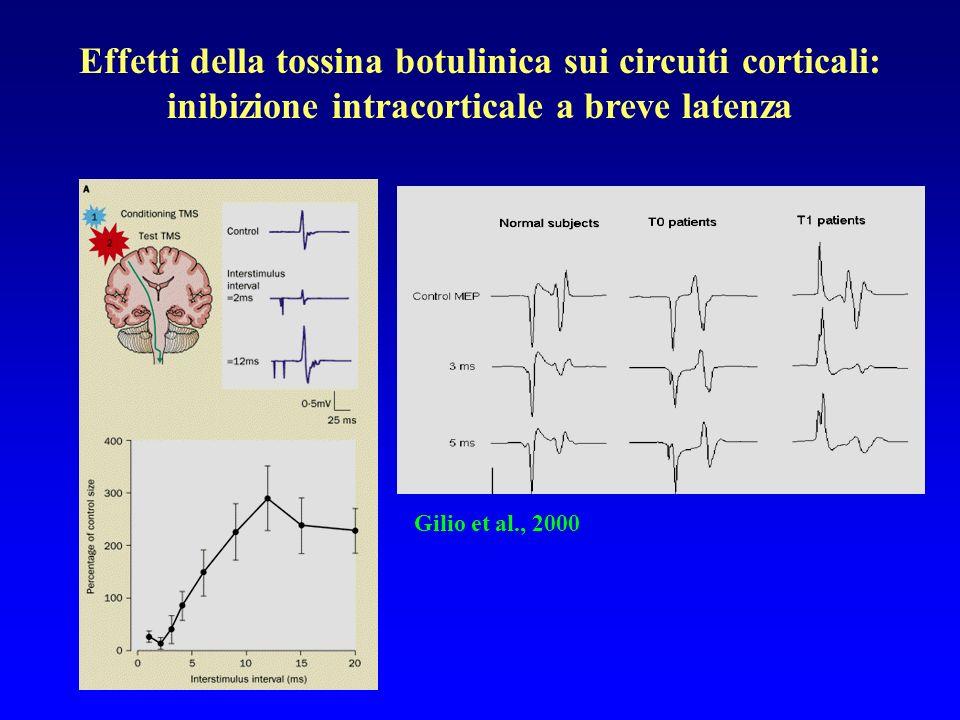 Effetti della tossina botulinica sui circuiti corticali: