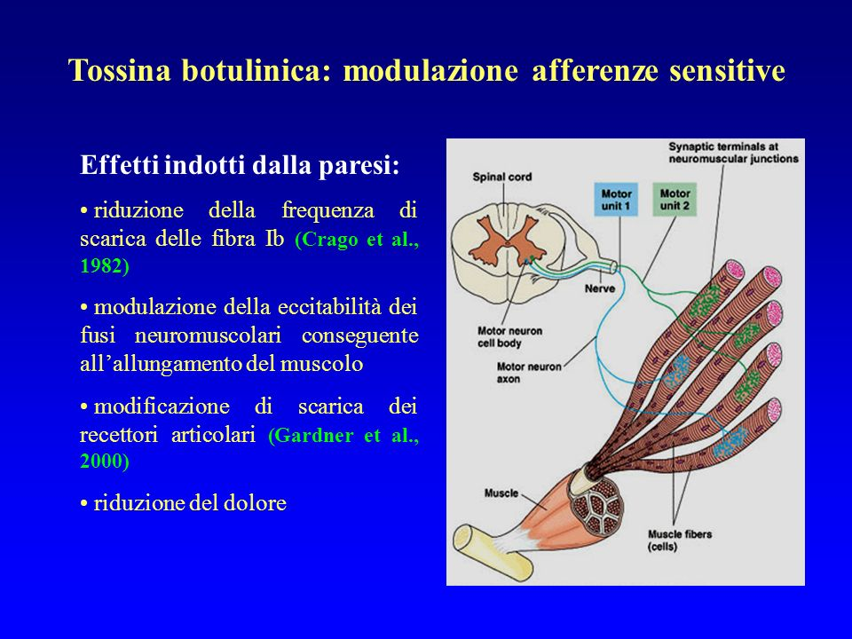 Tossina botulinica: modulazione afferenze sensitive