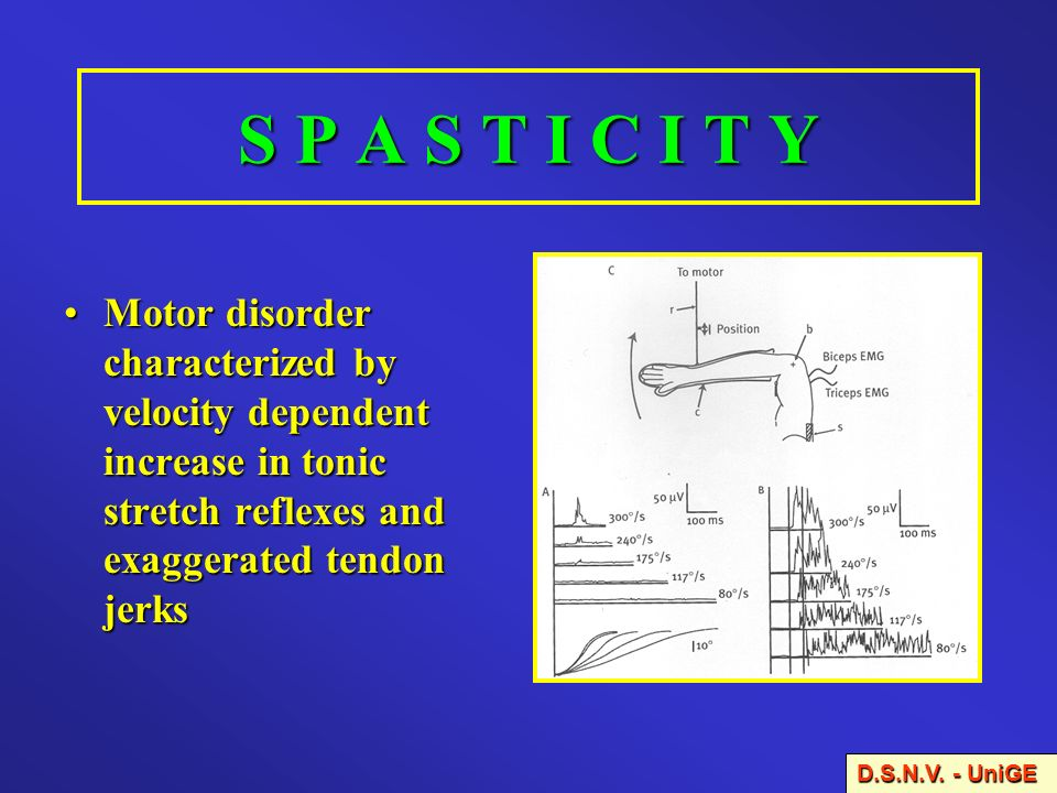S P A S T I C I T Y Motor disorder characterized by velocity dependent increase in tonic stretch reflexes and exaggerated tendon jerks.