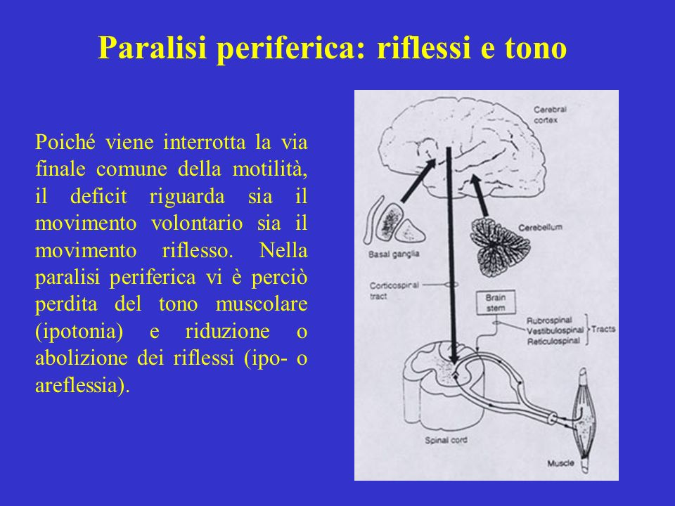 Paralisi periferica: riflessi e tono