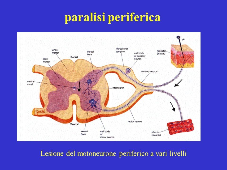 Lesione del motoneurone periferico a vari livelli