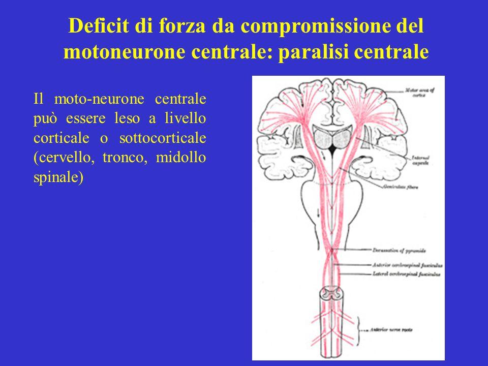 Deficit di forza da compromissione del motoneurone centrale: paralisi centrale