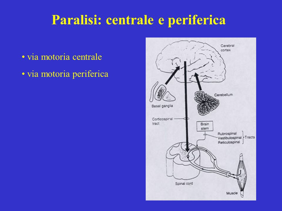 Paralisi: centrale e periferica