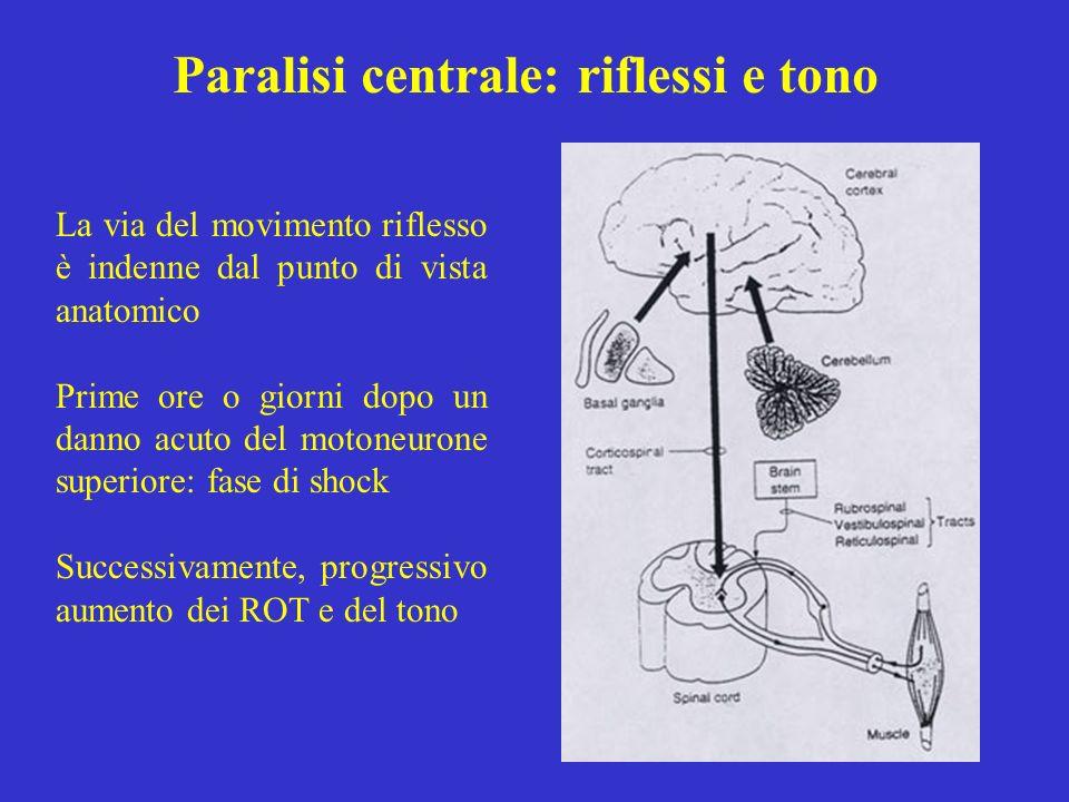 Paralisi centrale: riflessi e tono