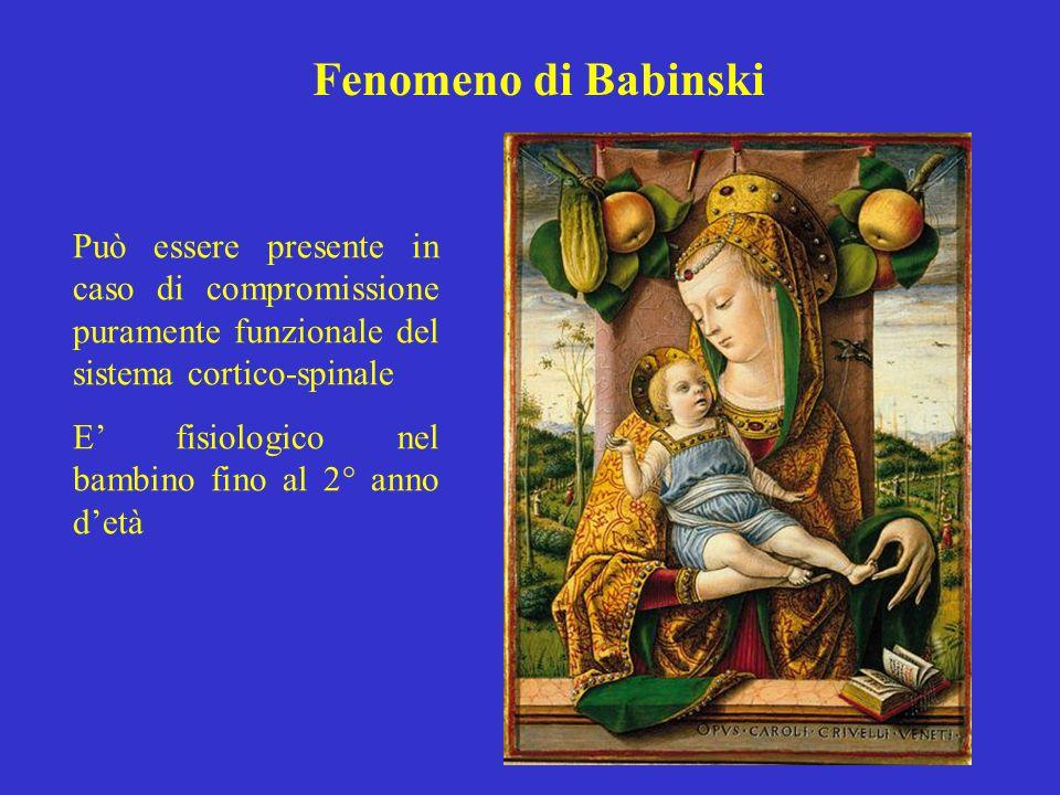 Fenomeno di Babinski Può essere presente in caso di compromissione puramente funzionale del sistema cortico-spinale.