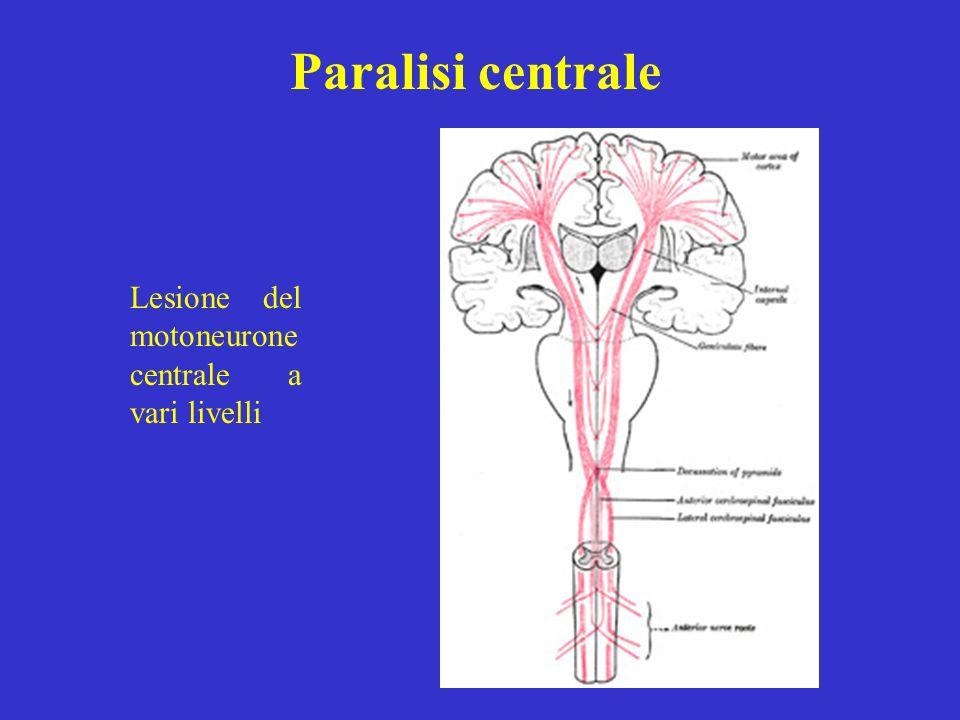Paralisi centrale Lesione del motoneurone centrale a vari livelli