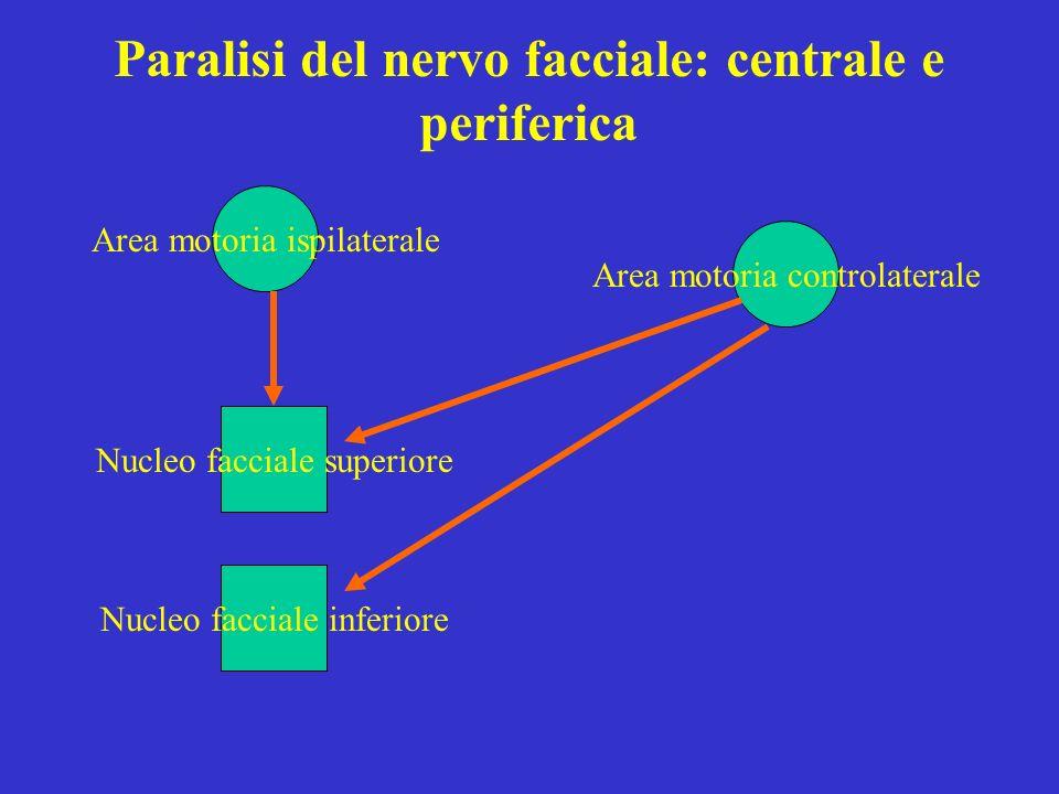 Paralisi del nervo facciale: centrale e periferica