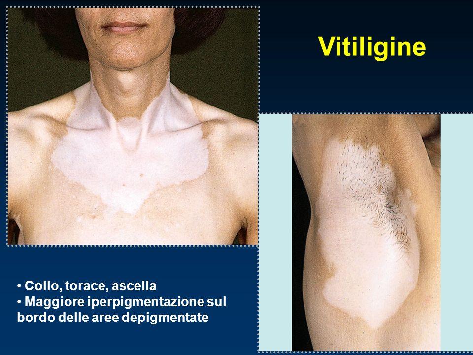 Vitiligine Collo, torace, ascella